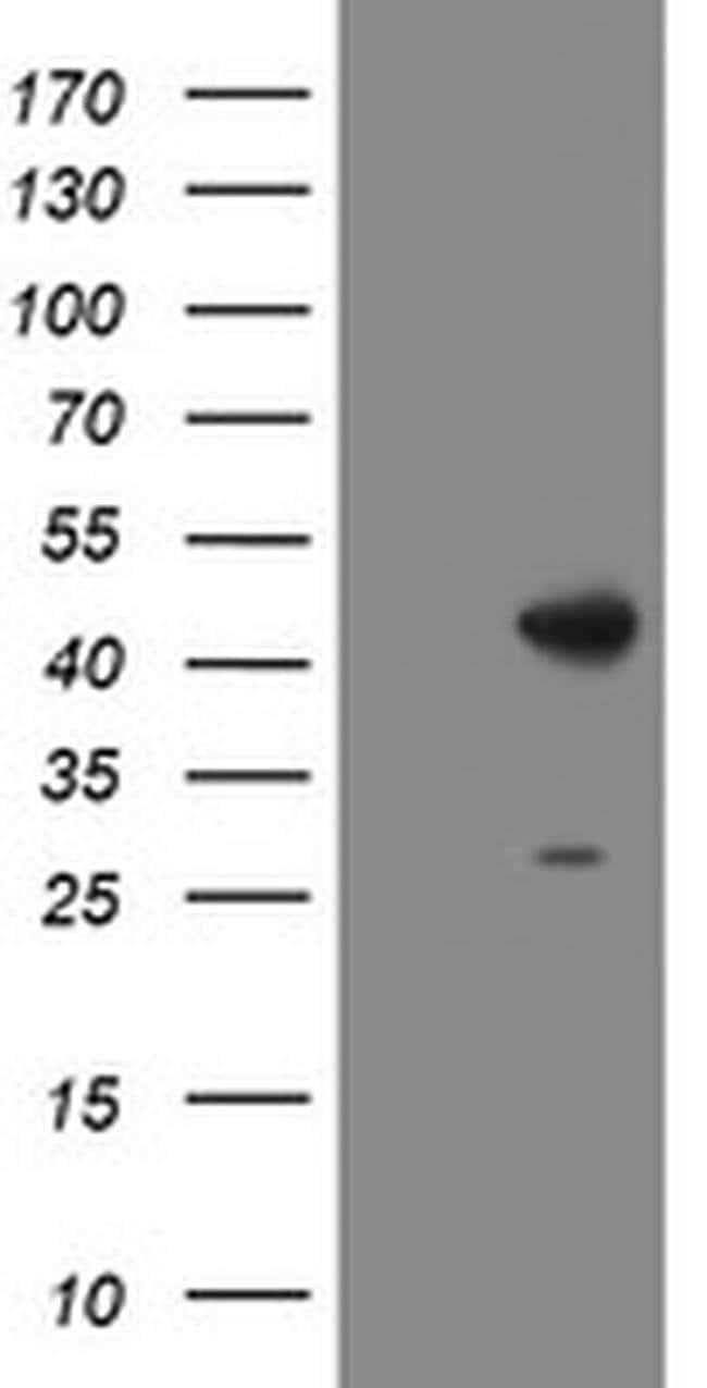 DBT Mouse anti-Human, Clone: OTI1G2, liquid, TrueMAB  100 µL; Unconjugated
