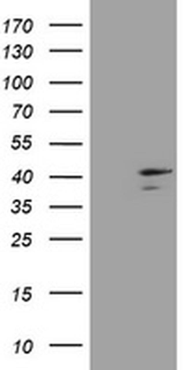 DCPS Mouse anti-Human, Clone: OTI4H8, liquid, TrueMAB  100 µL; Unconjugated