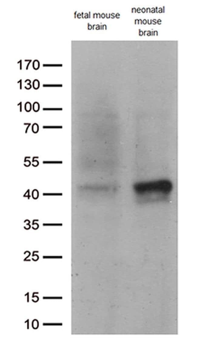 DCX Mouse anti-Human, Clone: OTI4A3, liquid, TrueMAB  100 µL; Unconjugated