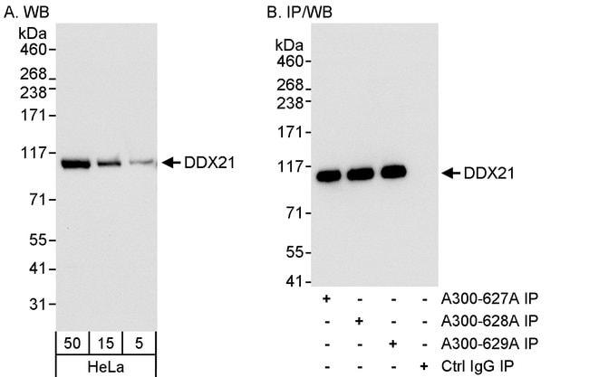 DDX21 Rabbit anti-Human, Polyclonal, Bethyl Laboratories  100 µL;