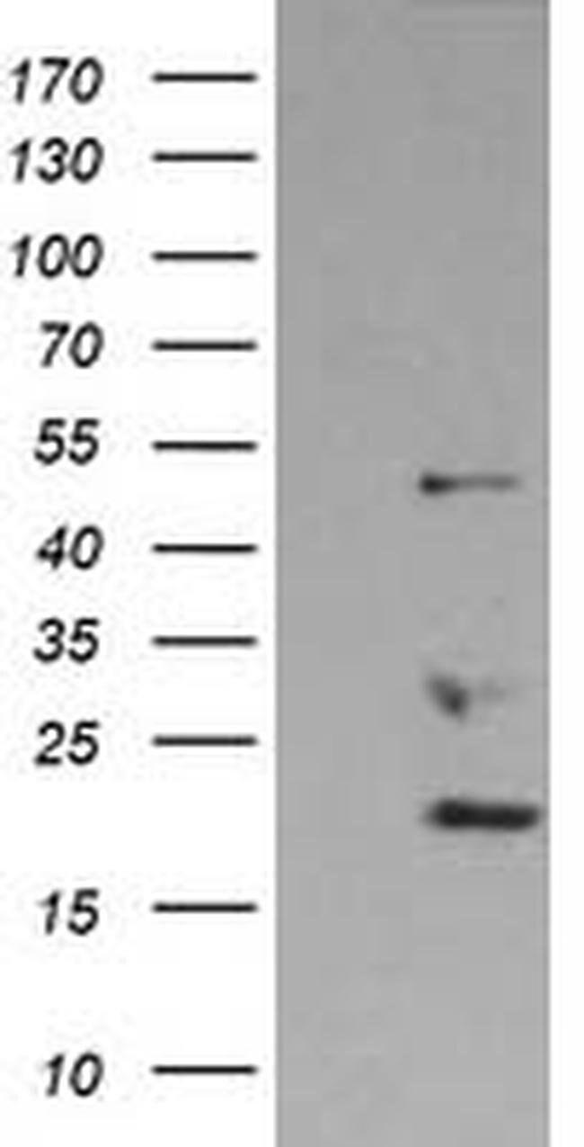 DDX39B Mouse anti-Canine, Human, Rat, Clone: OTI2E4, liquid, TrueMAB  100