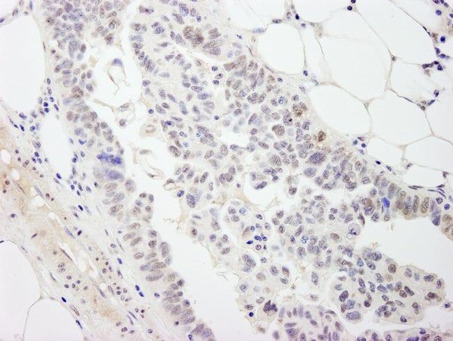 DDX54 Rabbit anti-Human, Polyclonal, Bethyl Laboratories 100 μL; Unconjugated:Antibodies