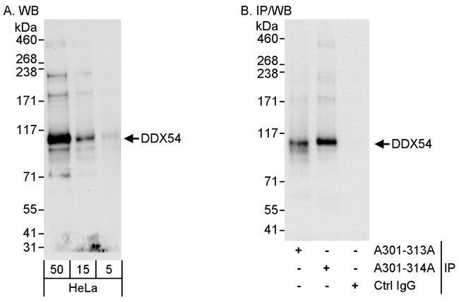 DDX54 Rabbit anti-Human, Polyclonal, Bethyl Laboratories  100 µL;