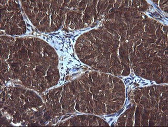 DDX58 Mouse anti-Human, Clone: OTI6C1, liquid, TrueMAB  100 µL; Unconjugated