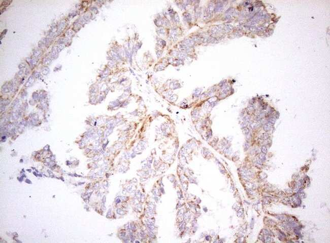 DECR1 Mouse anti-Human, Clone: OTI4G4, lyophilized, TrueMAB  100 µg;