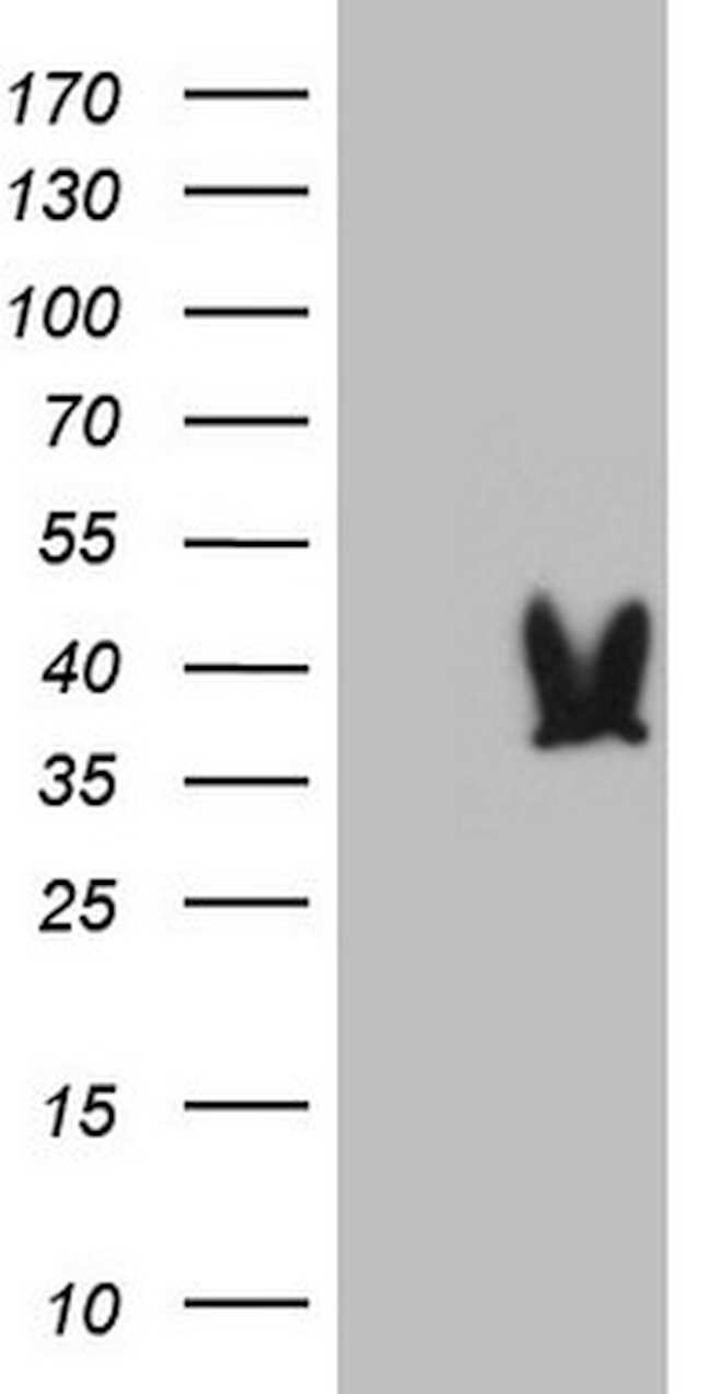 DECR1 Mouse anti-Human, Clone: OTI16C2, lyophilized, TrueMAB  100 µg;