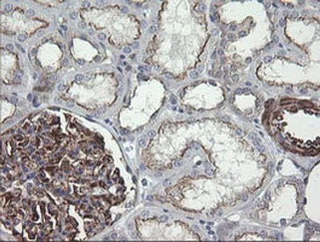 DEF6 Mouse anti-Human, Clone: OTI2C11, liquid, TrueMAB  100 µL; Unconjugated