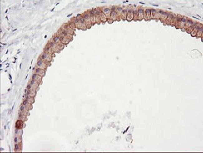DGKA Mouse anti-Human, Clone: OTI7B6, liquid, TrueMAB  100 µL; Unconjugated