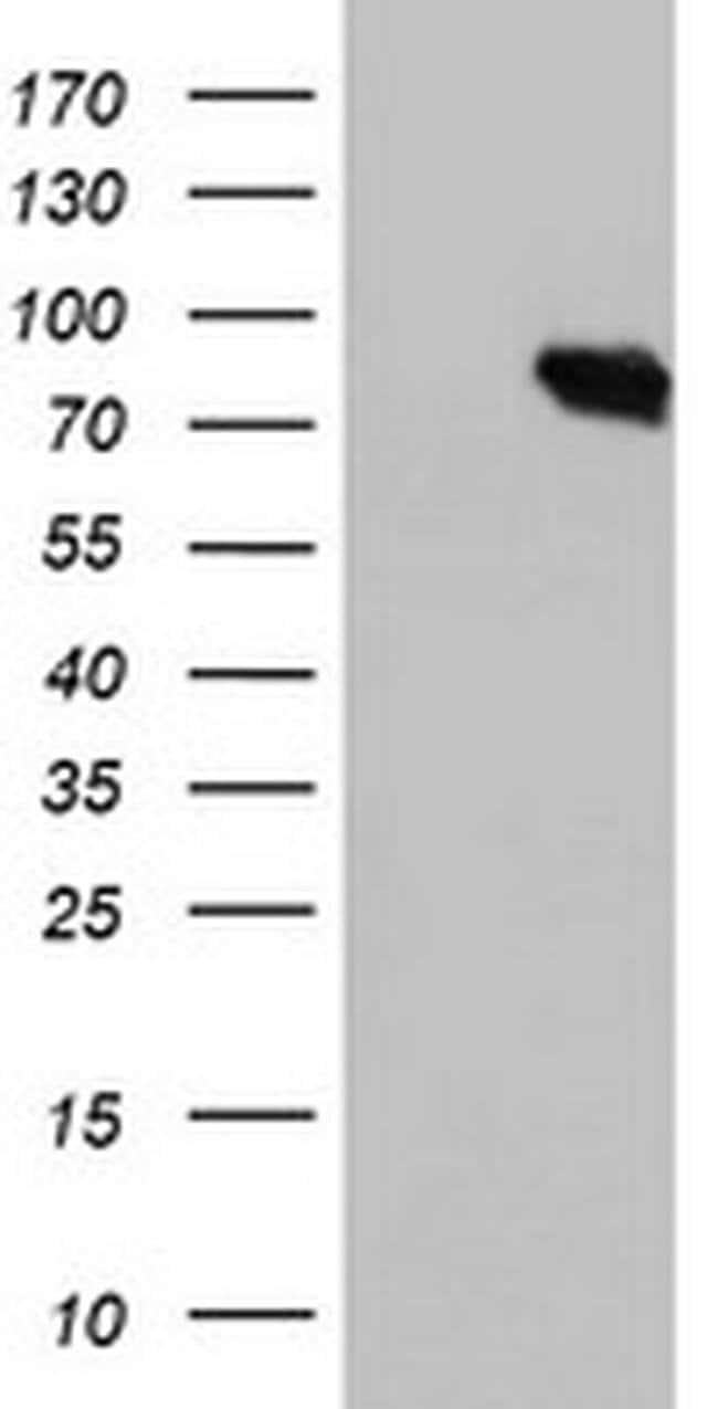 DGKA Mouse anti-Human, Clone: OTI6B3, liquid, TrueMAB  100 µL; Unconjugated