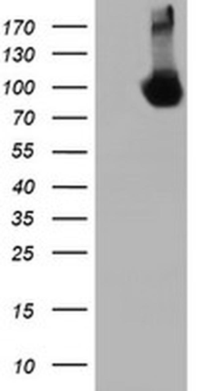 DGKA Mouse anti-Canine, Human, Rat, Clone: OTI3G7, liquid, TrueMAB  100