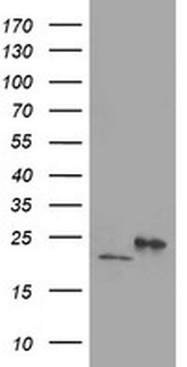 DHFRL1 Mouse anti-Human, Mouse, Clone: OTI1E2, liquid, TrueMAB  100 µL;