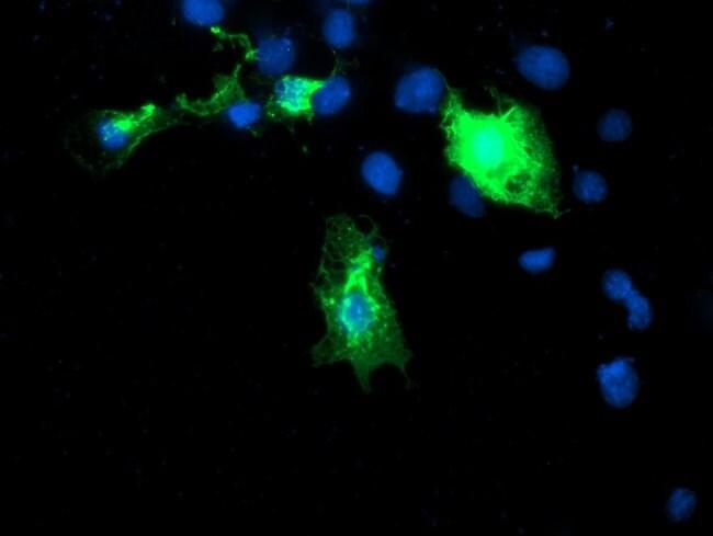DIXDC1 Mouse anti-Human, Clone: OTI1B3, liquid, TrueMAB  100 µL; Unconjugated