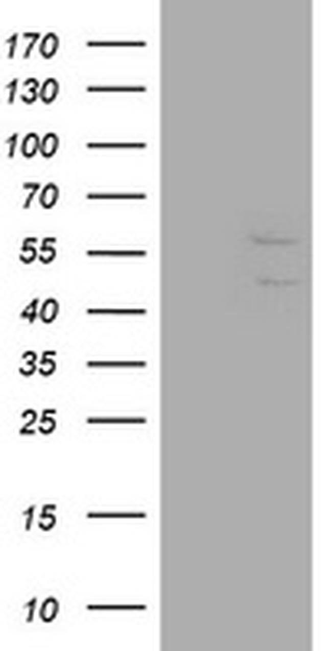 DIXDC1 Mouse anti-Human, Clone: OTI6D4, liquid, TrueMAB  100 µL; Unconjugated