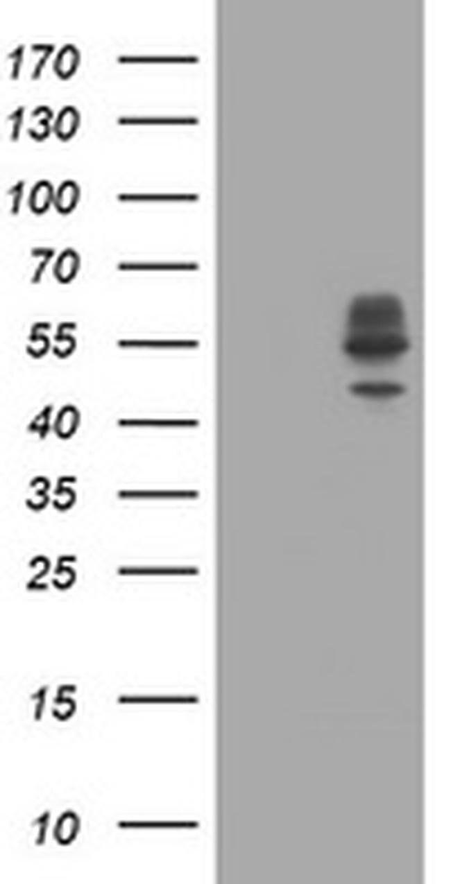 DIXDC1 Mouse anti-Human, Clone: OTI1A2, liquid, TrueMAB  100 µL; Unconjugated