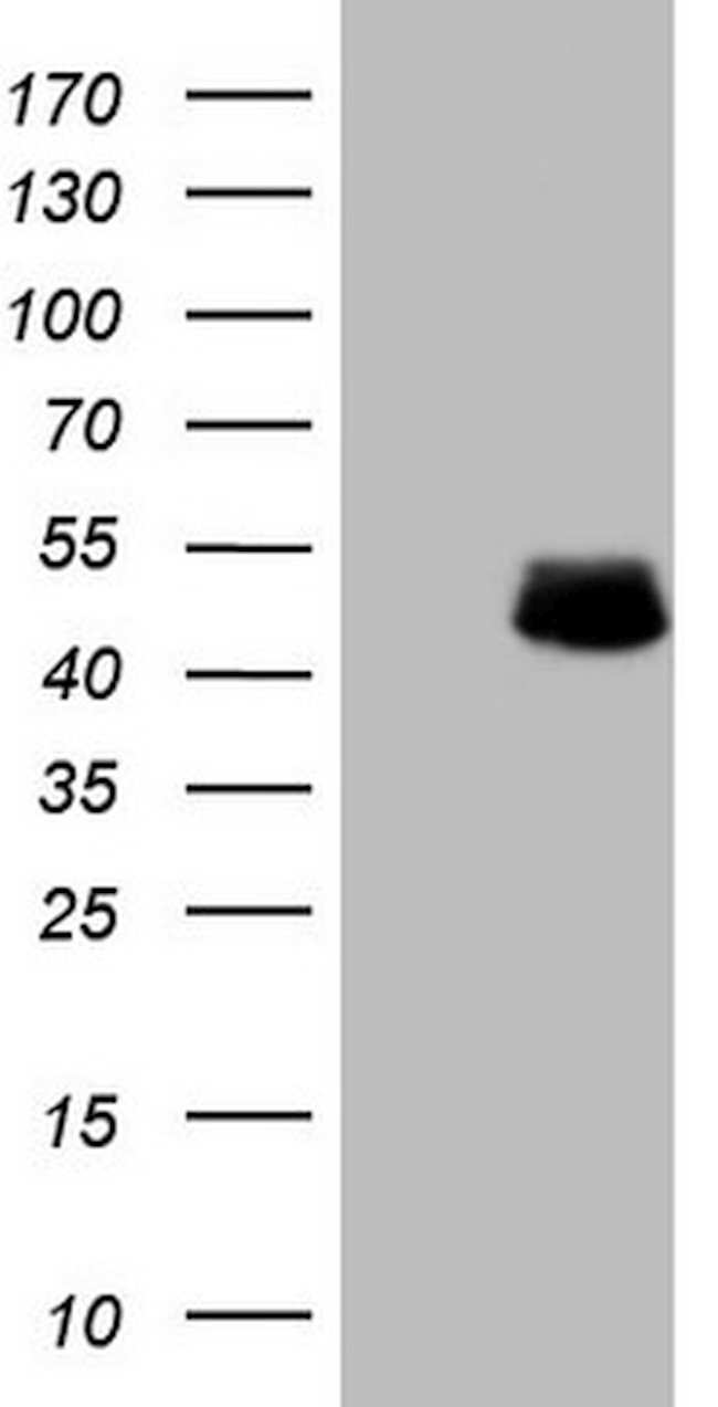 DMRT1 Mouse anti-Human, Clone: OTI1G10, lyophilized, TrueMAB  100 µg;