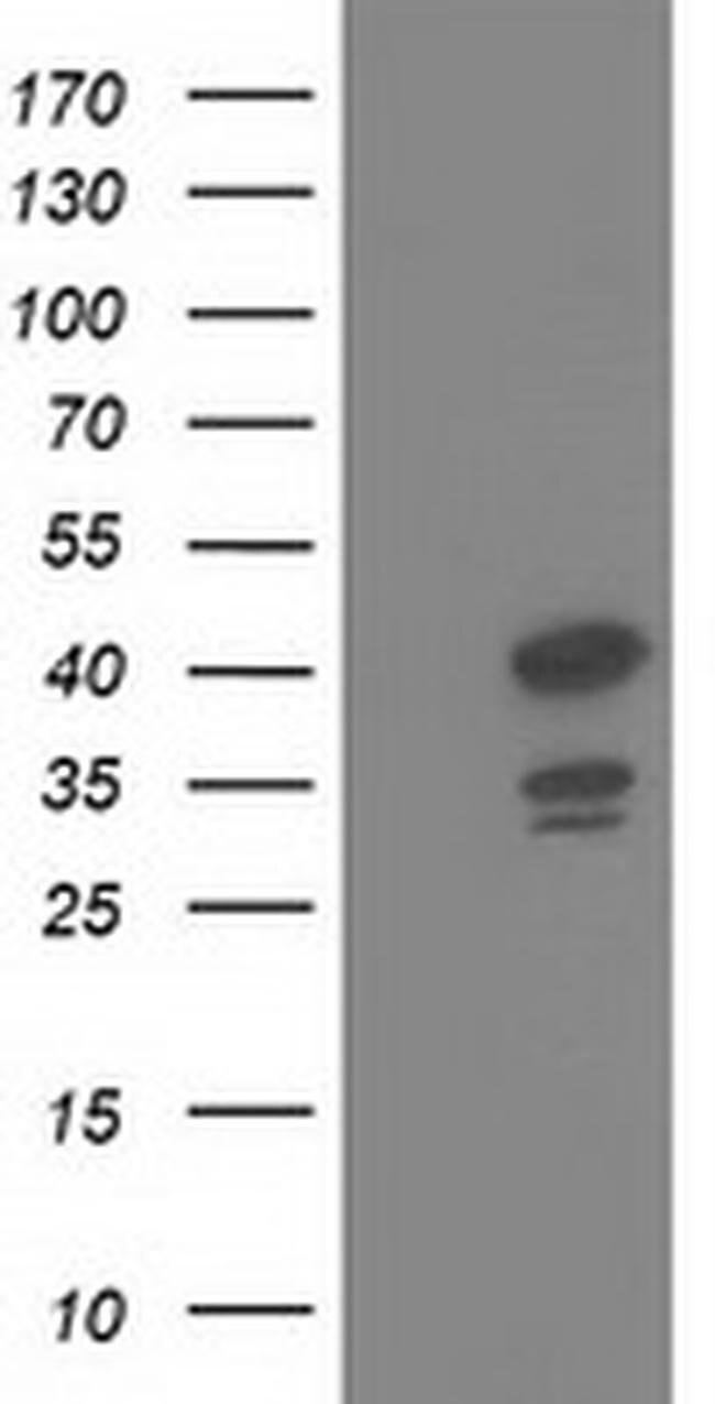 DNAJB1 Mouse anti-Human, Clone: OTI1A12, liquid, TrueMAB  100 µL;