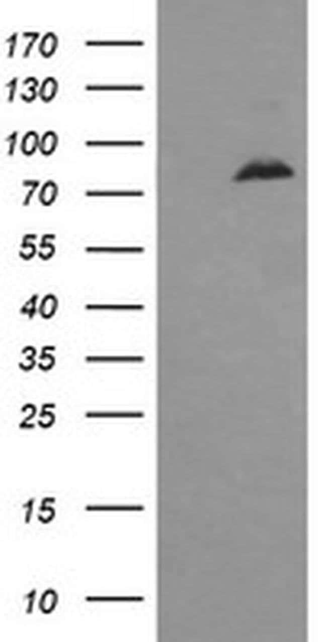 DNM1L Mouse anti-Human, Clone: OTI3F4, liquid, TrueMAB  100 µL; Unconjugated