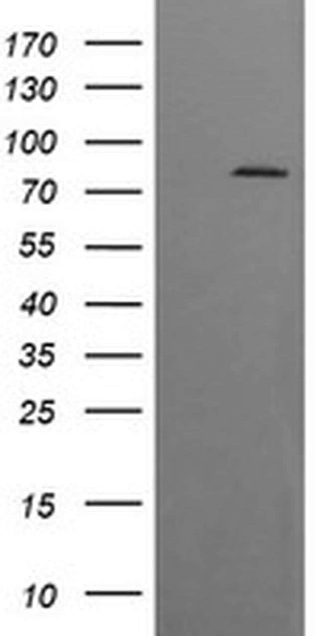 DNM1L Mouse anti-Human, Mouse, Rat, Clone: OTI2E7, liquid, TrueMAB  100