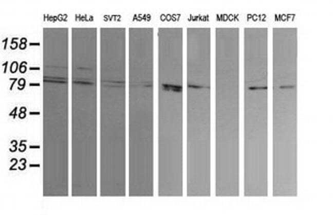 DNM1L Mouse anti-Human, Mouse, Rat, Clone: OTI2E7, liquid, TrueMAB  30