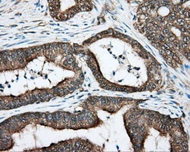 DNTTIP1 Mouse anti-Human, Clone: OTI1F4, liquid, TrueMAB  100 µL;