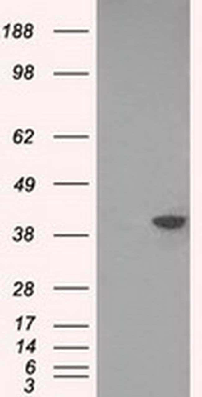 DNTTIP1 Mouse anti-Human, Clone: OTI1D3, liquid, TrueMAB  100 µL;