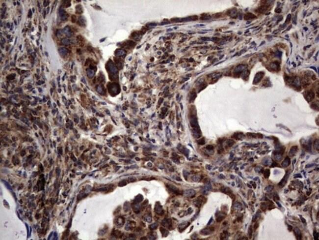 DOCK8 Mouse anti-Human, Clone: OTI4H10, lyophilized, TrueMAB  100 µg;