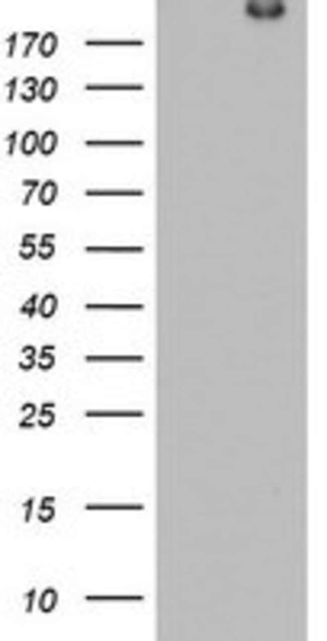 DOCK8 Mouse anti-Human, Clone: OTI7H2, lyophilized, TrueMAB  100 µg;