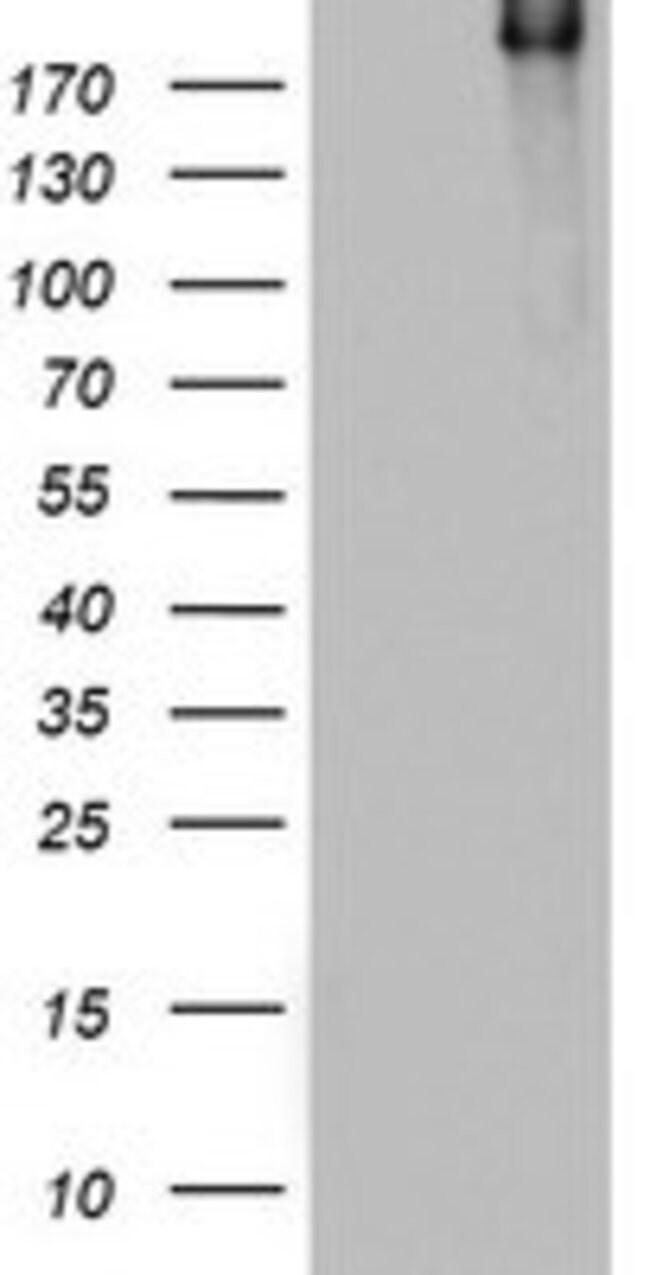 DOCK8 Mouse anti-Human, Clone: OTI8D9, lyophilized, TrueMAB  100 µg;