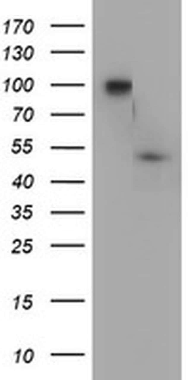 DOK7 Mouse anti-Human, Clone: OTI5C6, liquid, TrueMAB  100 µL; Unconjugated