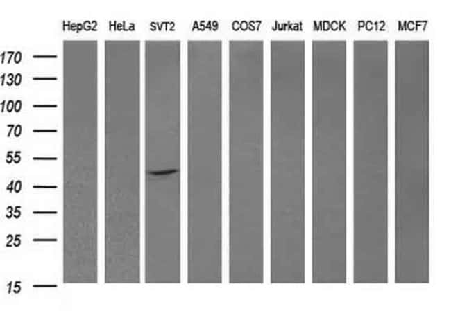 DOK7 Mouse anti-Human, Mouse, Clone: OTI1A9, liquid, TrueMAB  100 µL;