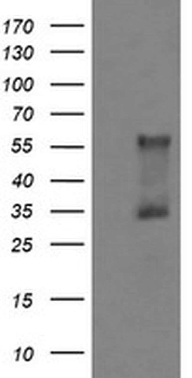 DOK7 Mouse anti-Human, Clone: OTI5G8, liquid, TrueMAB  100 µL; Unconjugated