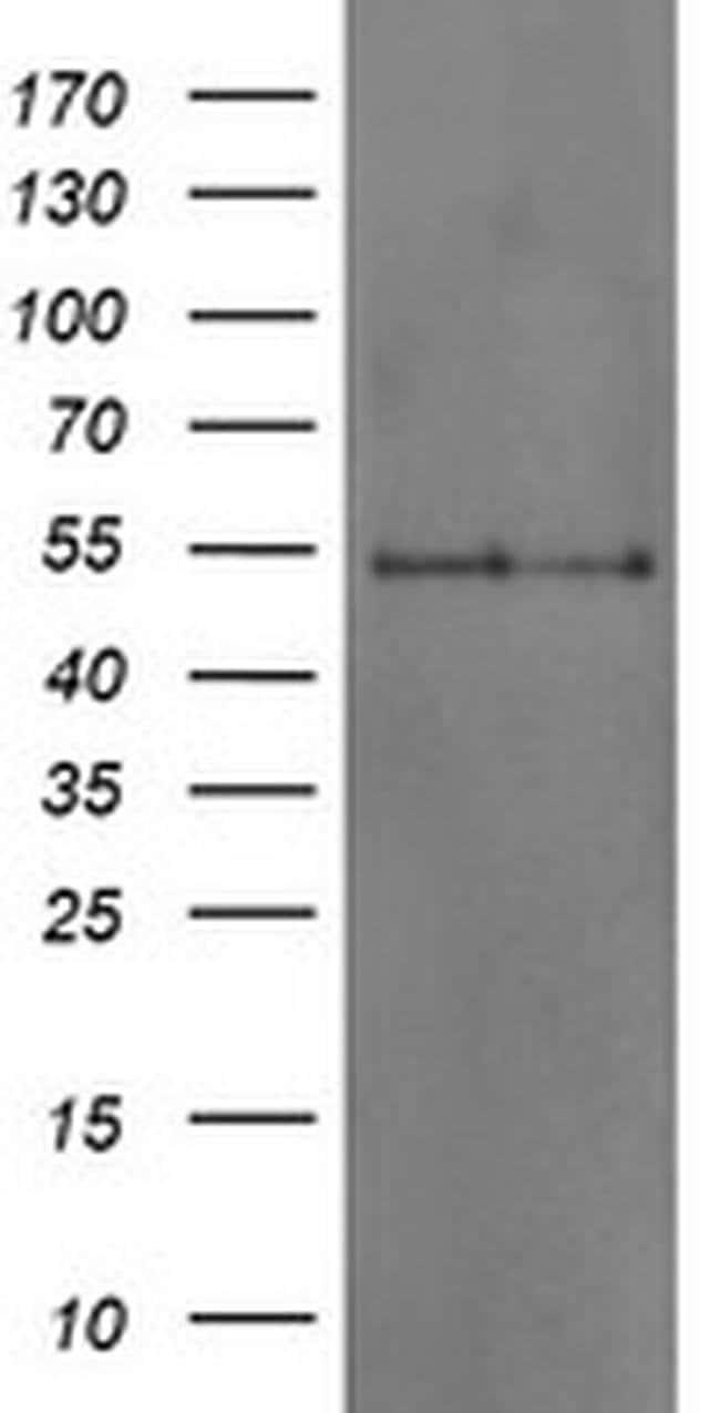 DOK7 Mouse anti-Human, Clone: OTI1D11, liquid, TrueMAB  100 µL; Unconjugated