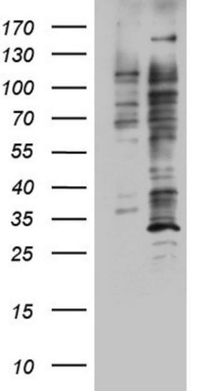 DOT1L Mouse anti-Human, Clone: OTI1F6, lyophilized, TrueMAB  100 µg;