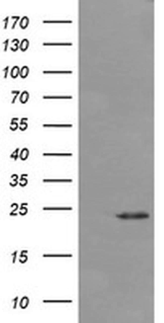 DPCD Mouse anti-Human, Clone: OTI4B9, liquid, TrueMAB  100 µL; Unconjugated