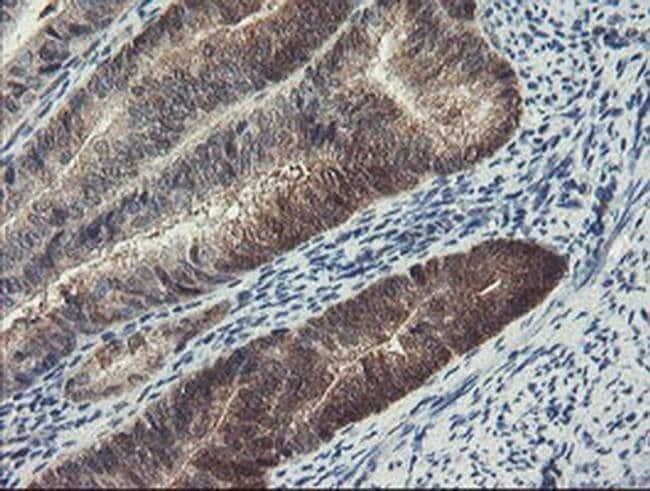 DPH2 Mouse anti-Human, Clone: OTI1A12, liquid, TrueMAB  100 µL; Unconjugated