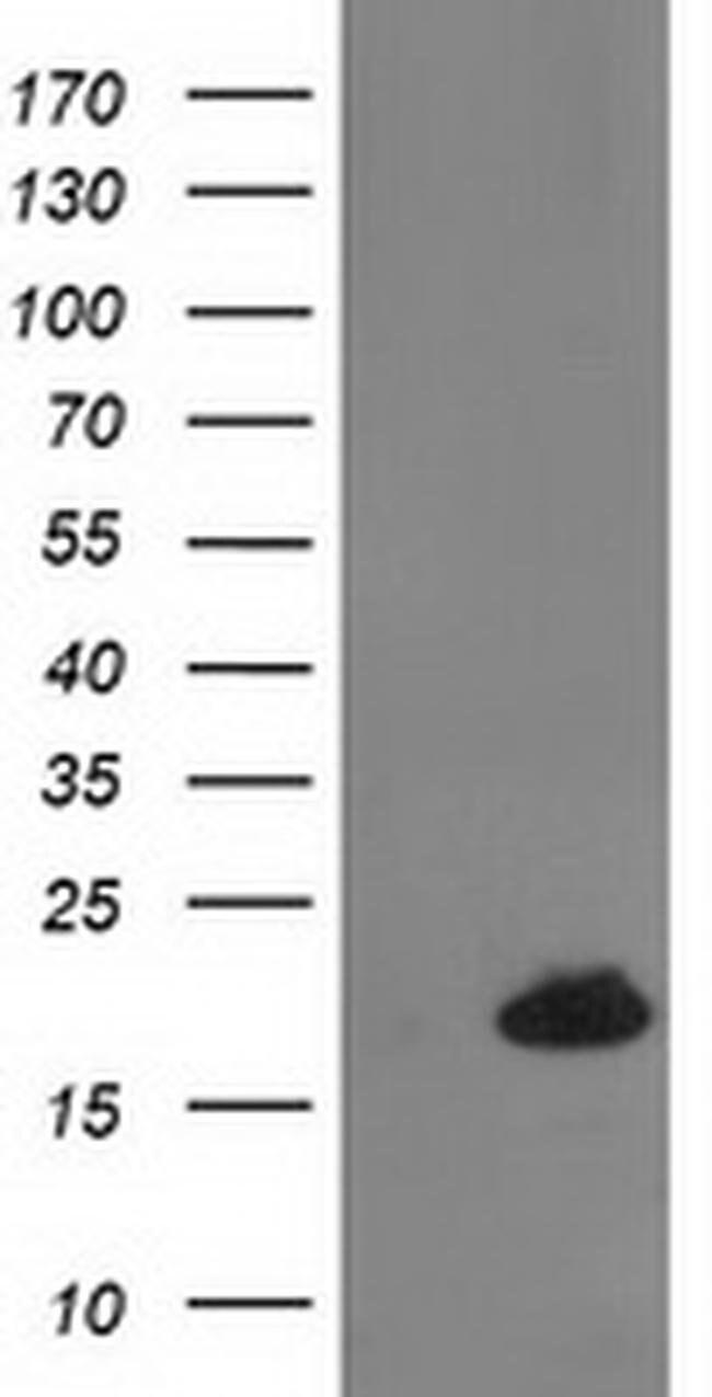 DSTN Mouse anti-Human, Clone: OTI2C10, liquid, TrueMAB  100 µL; Unconjugated