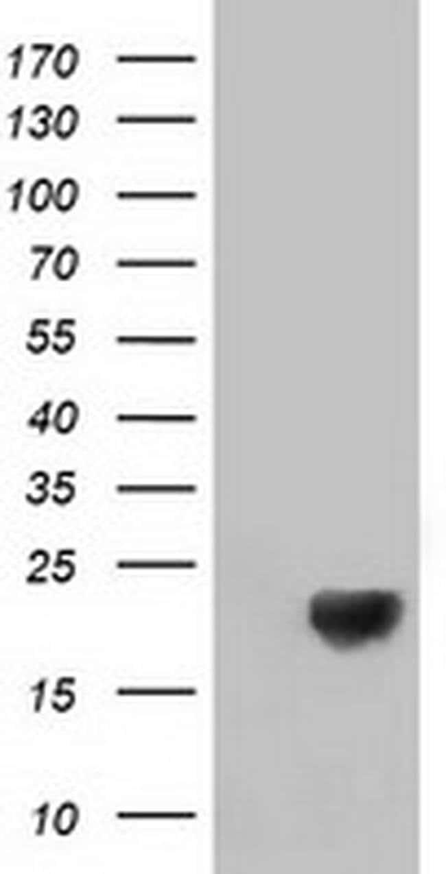 DSTN Mouse anti-Human, Clone: OTI2E8, liquid, TrueMAB  100 µL; Unconjugated