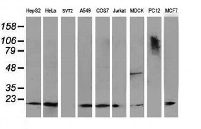 DSTN Mouse anti-Canine, Human, Clone: OTI1G8, liquid, TrueMAB  100 µL;