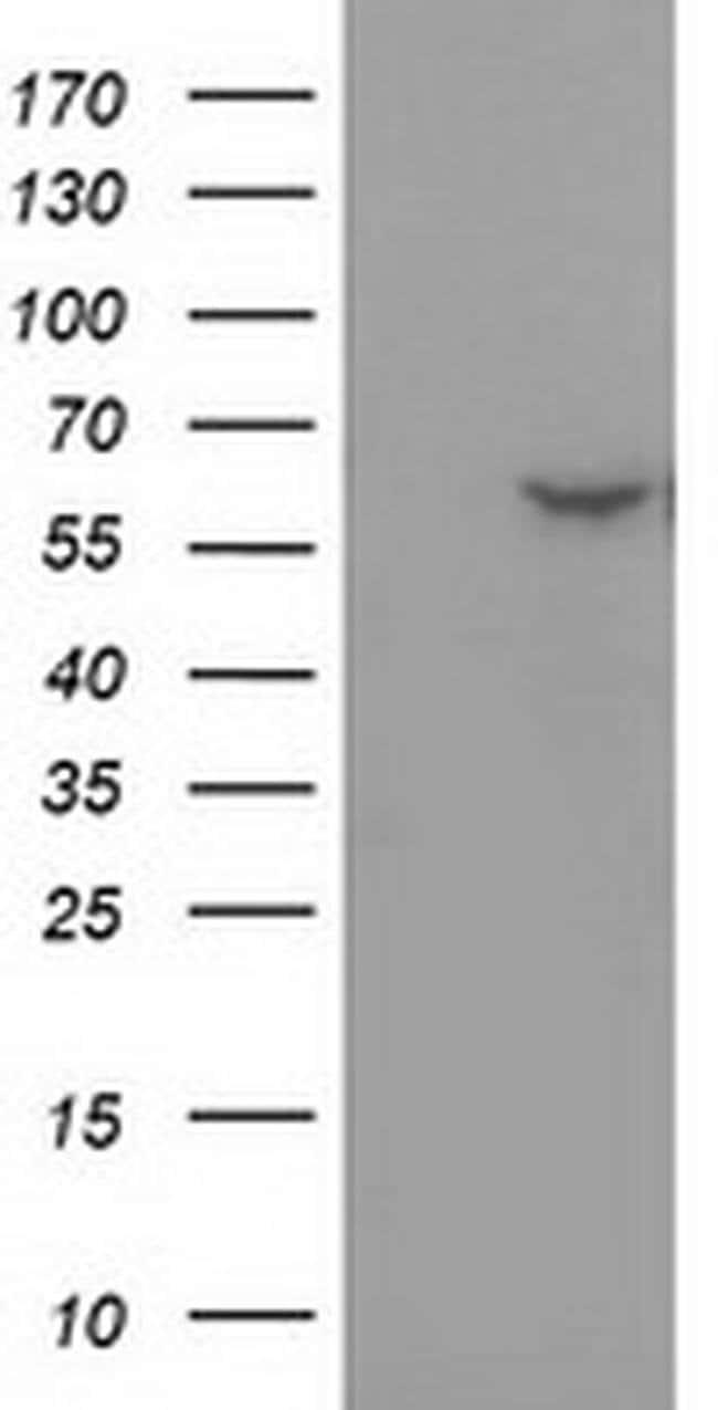 DTNA Mouse anti-Human, Clone: OTI1C2, liquid, TrueMAB  30 µL; Unconjugated