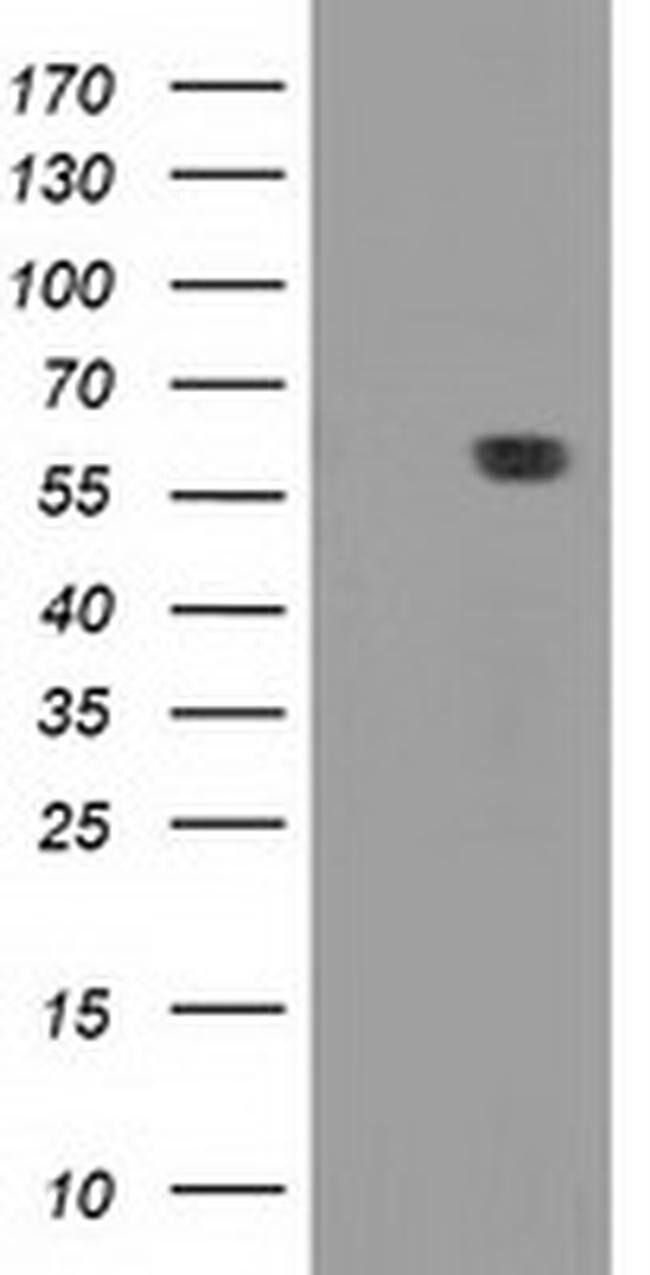DTNA Mouse anti-Human, Clone: OTI1B11, liquid, TrueMAB  100 µL; Unconjugated