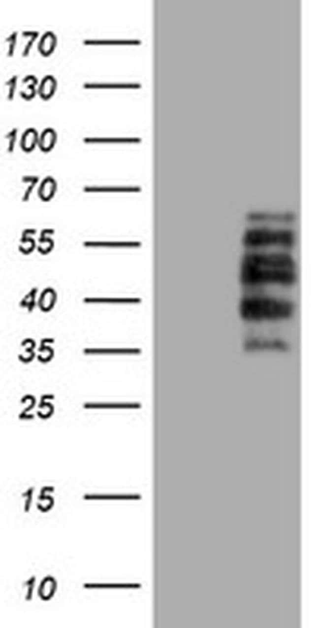 DTNB Mouse anti-Human, Mouse, Rat, Clone: OTI3H8, liquid, TrueMAB  100