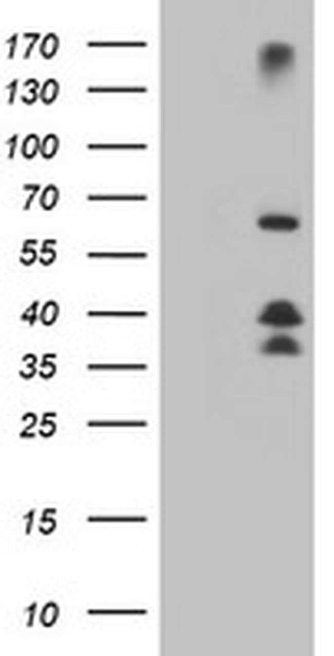 DTNB Mouse anti-Human, Mouse, Clone: OTI2E3, liquid, TrueMAB  100 µL;