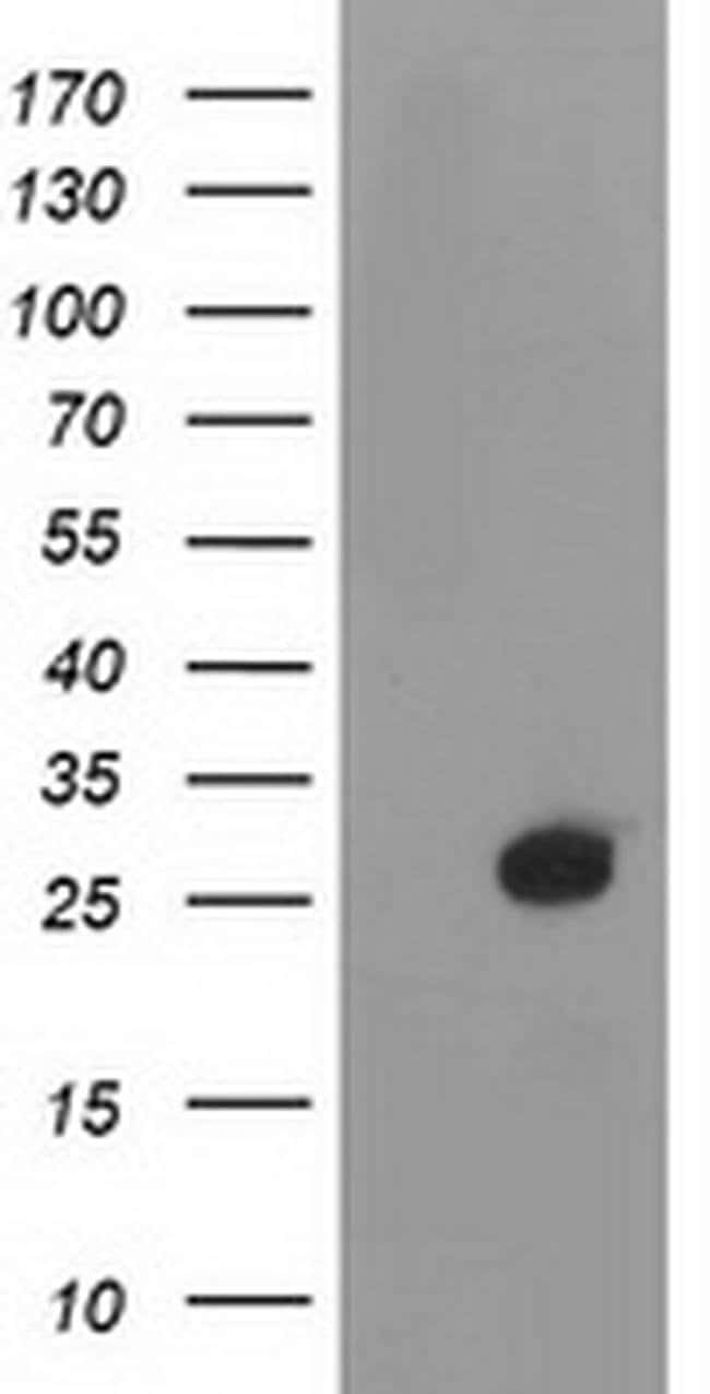 DTYMK Mouse anti-Human, Clone: OTI1E6, liquid, TrueMAB  100 µL; Unconjugated