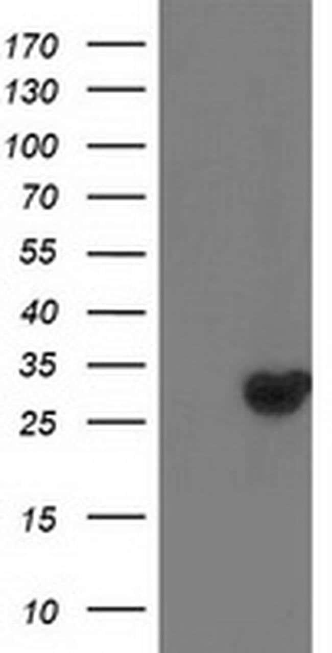 DTYMK Mouse anti-Human, Clone: OTI2B1, liquid, TrueMAB  100 µL; Unconjugated