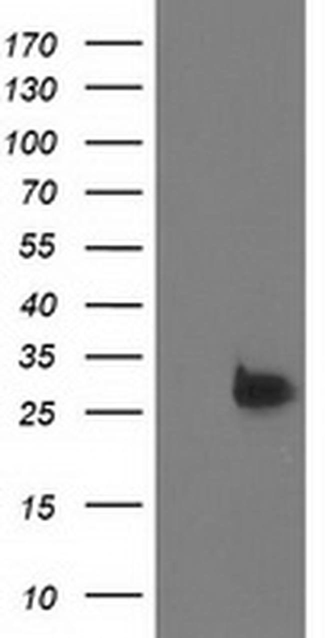 DTYMK Mouse anti-Human, Clone: OTI1C4, liquid, TrueMAB  100 µL; Unconjugated