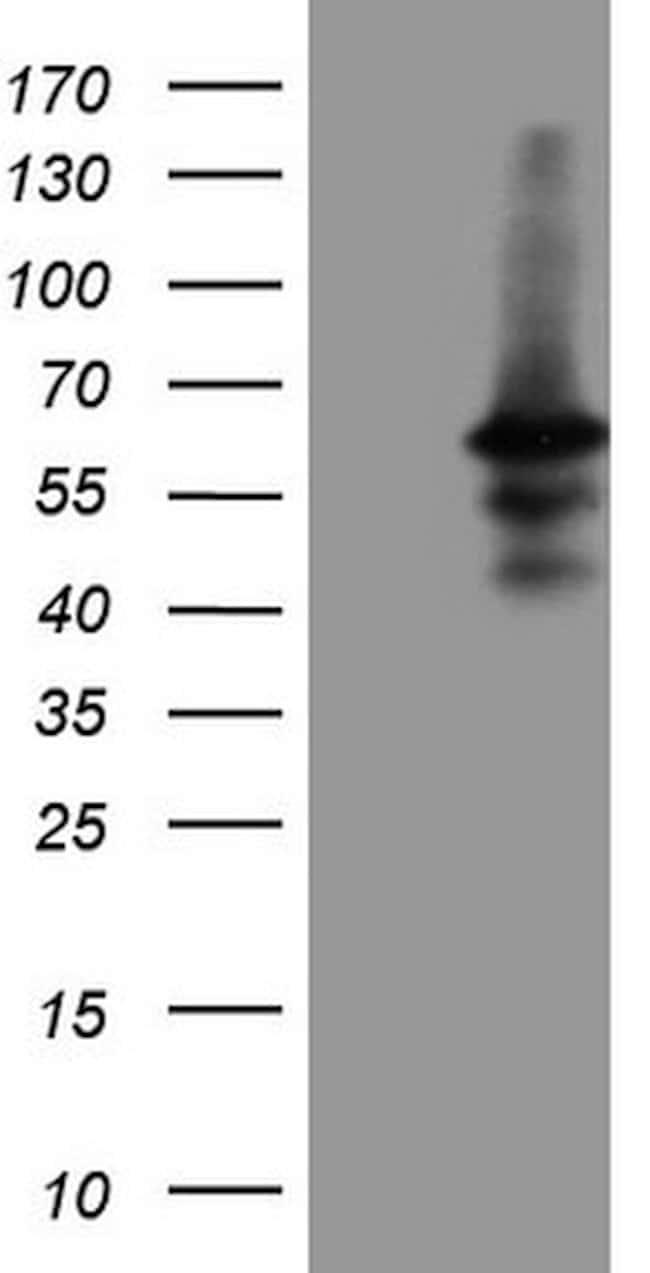 DUSP10 Mouse anti-Human, Clone: OTI3D8, lyophilized, TrueMAB  100 µg;