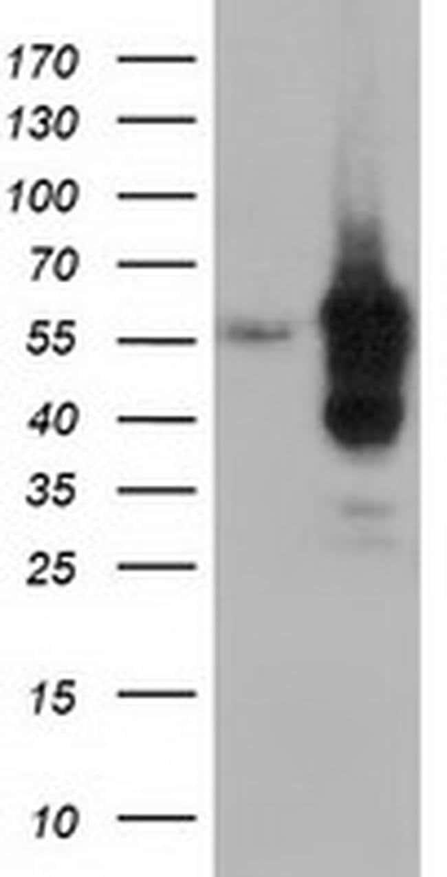DYNC1LI1 Mouse anti-Human, Clone: OTI1H4, liquid, TrueMAB  100 µL;