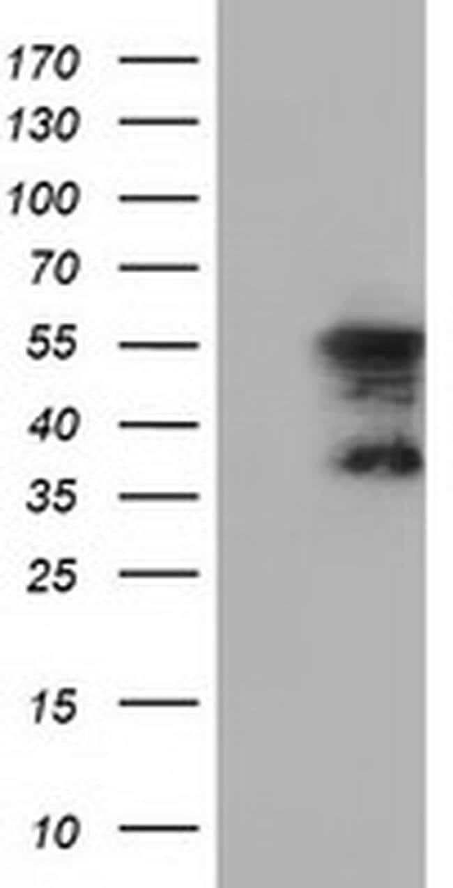 DYNC1LI1 Mouse anti-Human, Clone: OTI2B6, liquid, TrueMAB  100 µL;