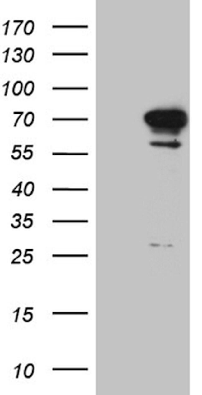 DYRK2 Mouse anti-Human, Clone: OTI1G8, lyophilized, TrueMAB  100 µg;