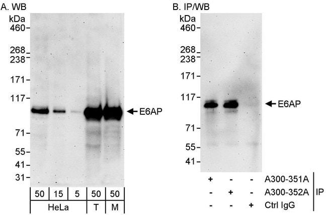 E6AP Rabbit anti-Human, Mouse, Polyclonal, Bethyl Laboratories  100 µL;